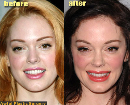 http://cityrag.blogs.com/photos/uncategorized/2007/05/24/rose_mcgowan_facelift.jpg