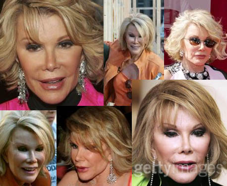 http://cityrag.blogs.com/photos/uncategorized/joan_rivers_plastic_surgery.jpg